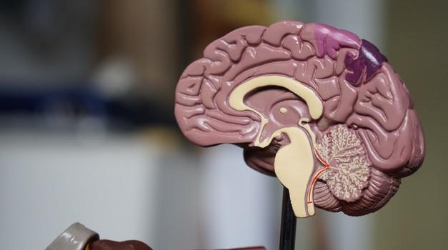 Intel će razviti AI za precizno otkrivanje tumora mozga u ranoj fazi